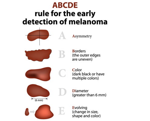 ABCDE rule for early detection of melanoma